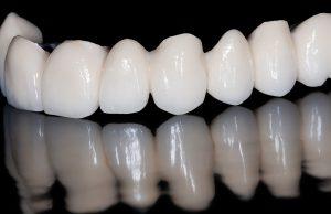 san jose dental bridges